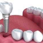 ایمپلنت بهتر است یا دندان طبیعی ؟!