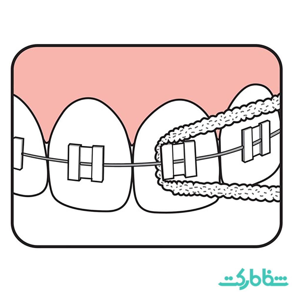 نخ دندان بریج و ایمپلنت، tepe
