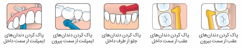 طرز استفاده از مسواک بین دندانی ،مسواک بین دندانی ،مسواک بین دندانی tepe
